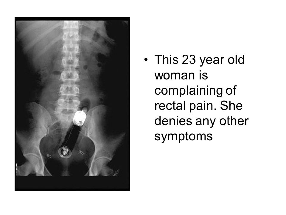 This 23 year old woman is complaining of rectal pain