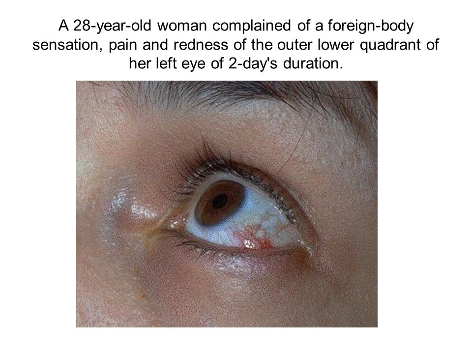 A 28-year-old woman complained of a foreign-body sensation, pain and redness of the outer lower quadrant of her left eye of 2-day s duration.