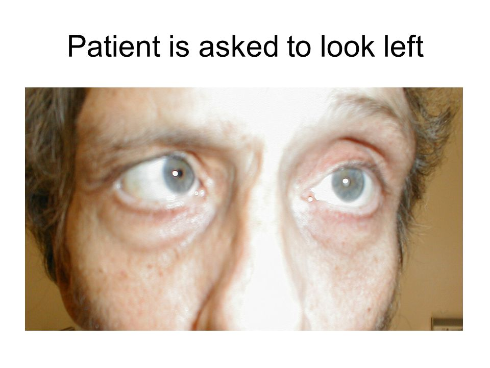 Patient is asked to look left