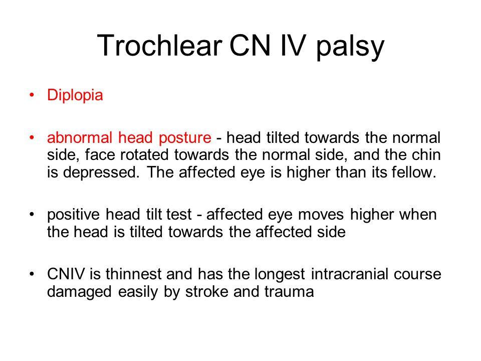 Trochlear CN IV palsy Diplopia