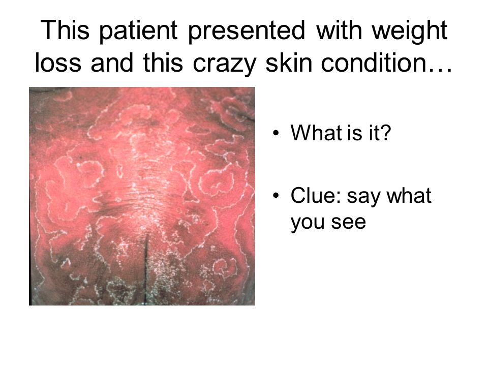 This patient presented with weight loss and this crazy skin condition…
