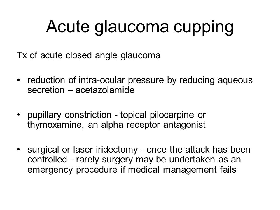 Acute glaucoma cupping
