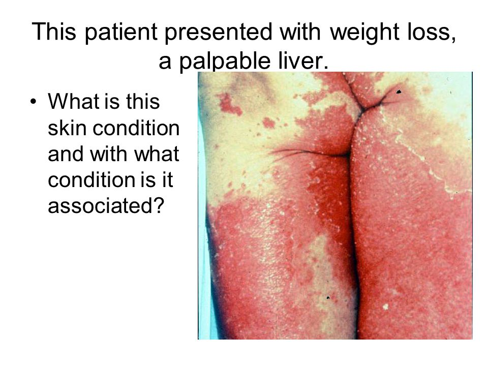 This patient presented with weight loss, a palpable liver.