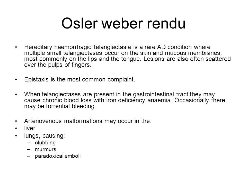 Osler weber rendu