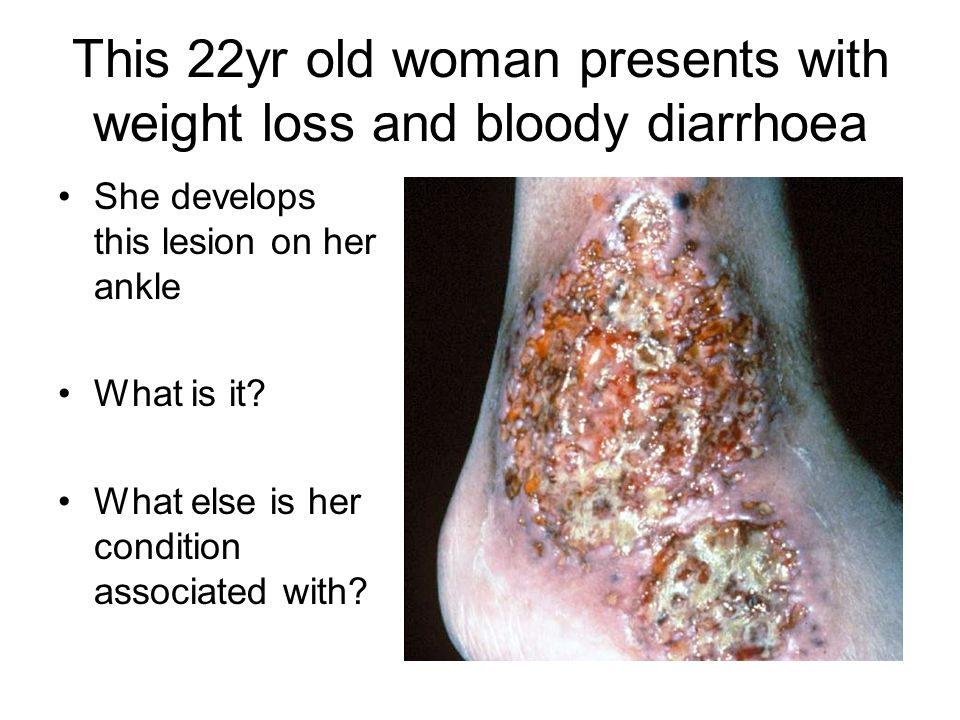 This 22yr old woman presents with weight loss and bloody diarrhoea