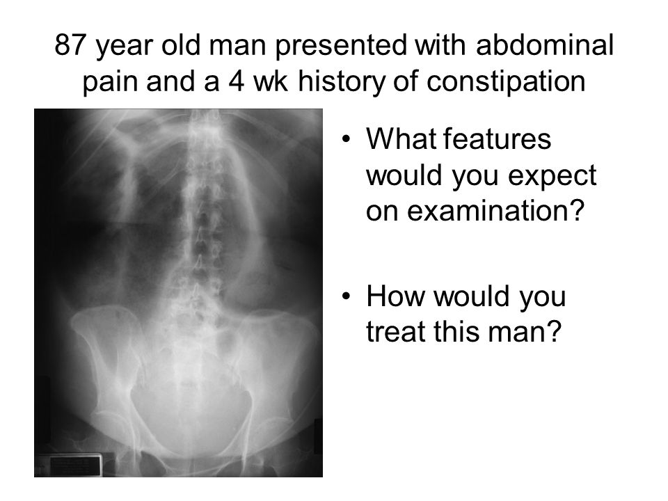 87 year old man presented with abdominal pain and a 4 wk history of constipation