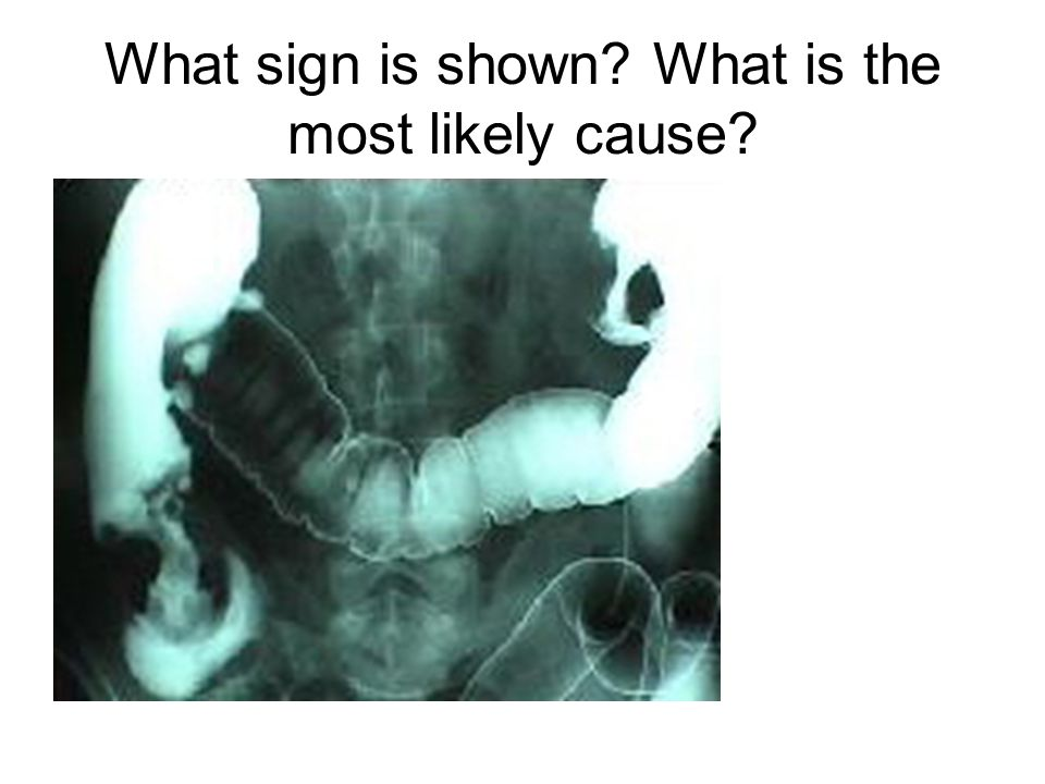 What sign is shown What is the most likely cause