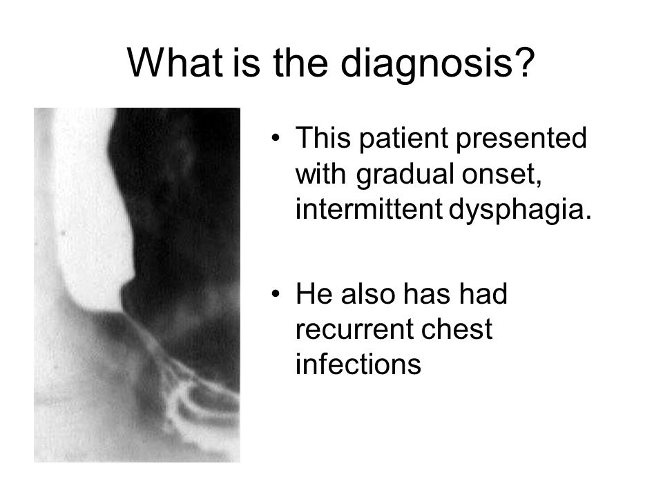 What is the diagnosis. This patient presented with gradual onset, intermittent dysphagia.