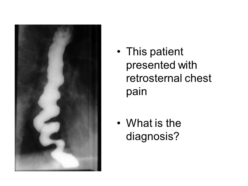 This patient presented with retrosternal chest pain