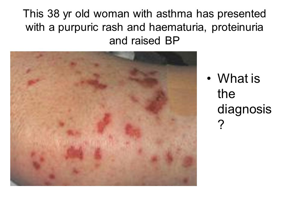 This 38 yr old woman with asthma has presented with a purpuric rash and haematuria, proteinuria and raised BP