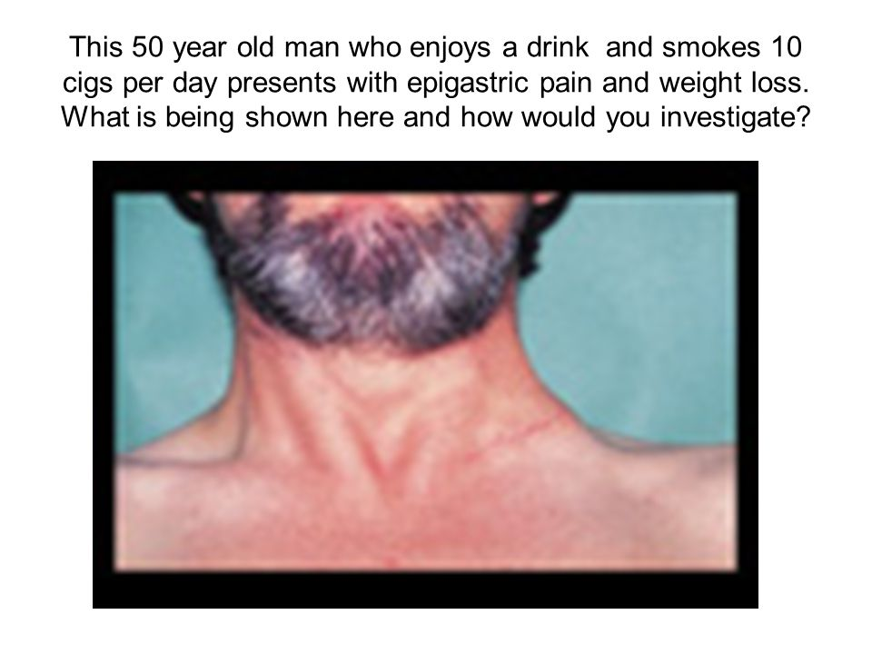 This 50 year old man who enjoys a drink and smokes 10 cigs per day presents with epigastric pain and weight loss.