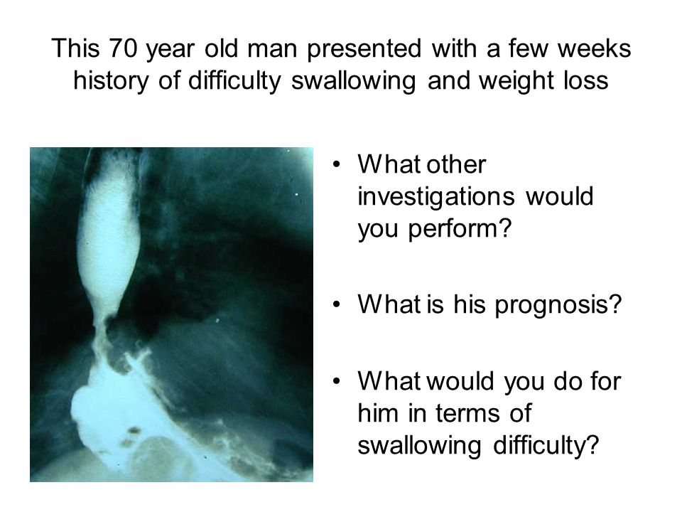 This 70 year old man presented with a few weeks history of difficulty swallowing and weight loss