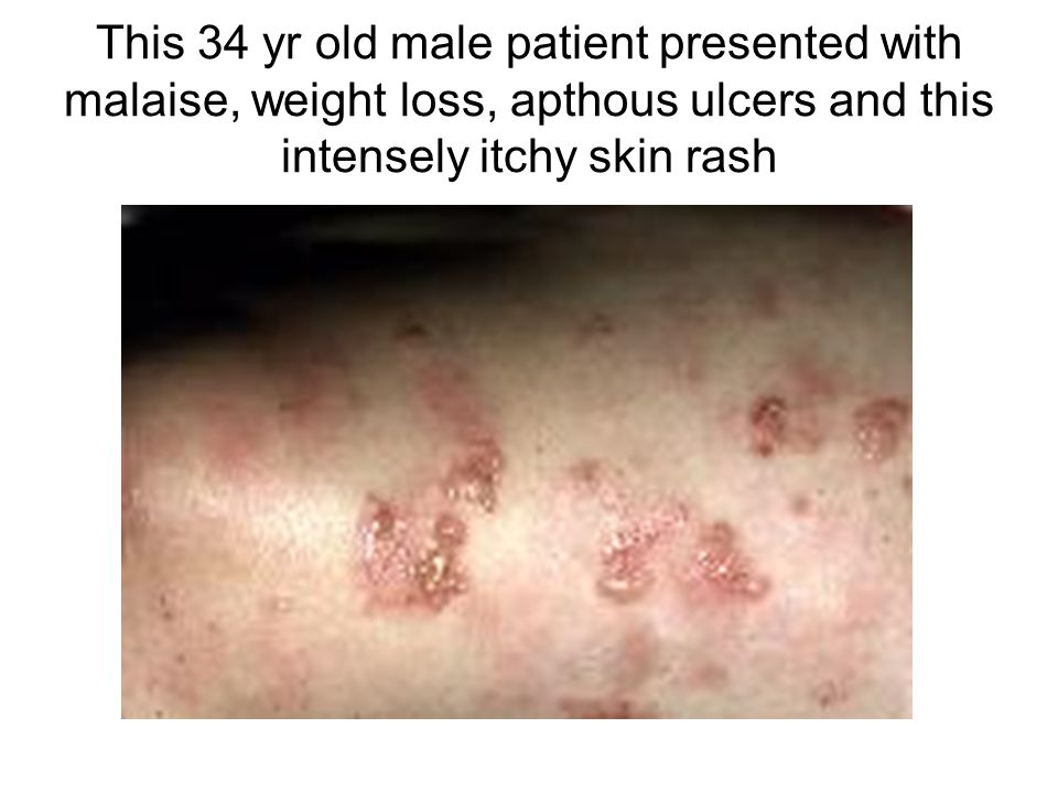 This 34 yr old male patient presented with malaise, weight loss, apthous ulcers and this intensely itchy skin rash