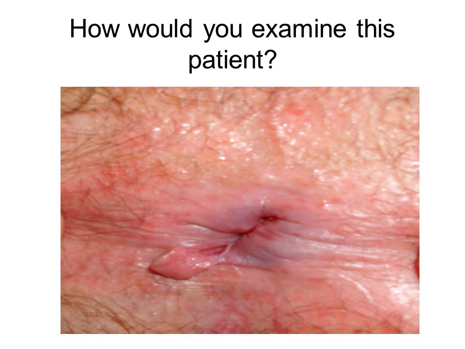 How would you examine this patient