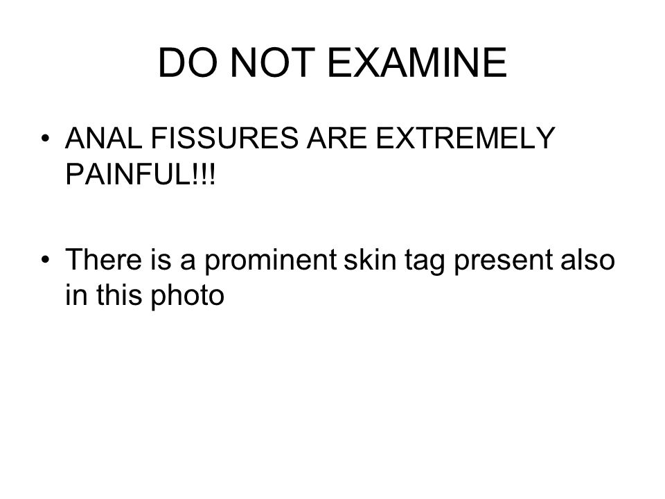 DO NOT EXAMINE ANAL FISSURES ARE EXTREMELY PAINFUL!!!