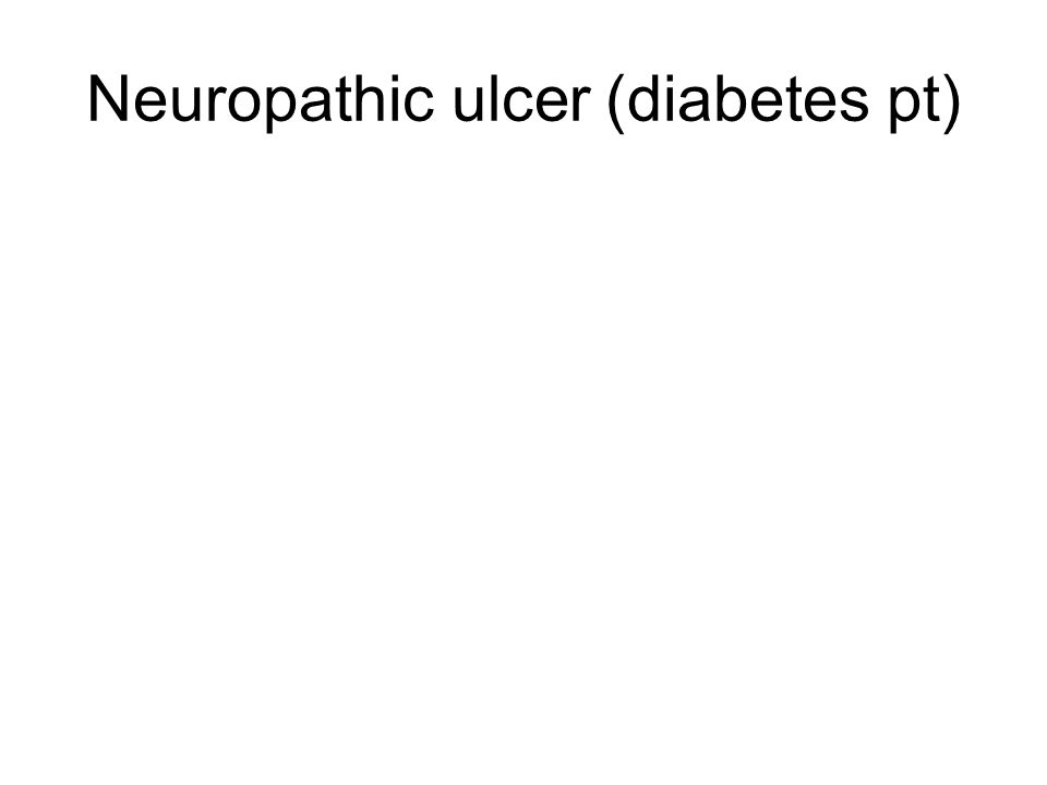 Neuropathic ulcer (diabetes pt)