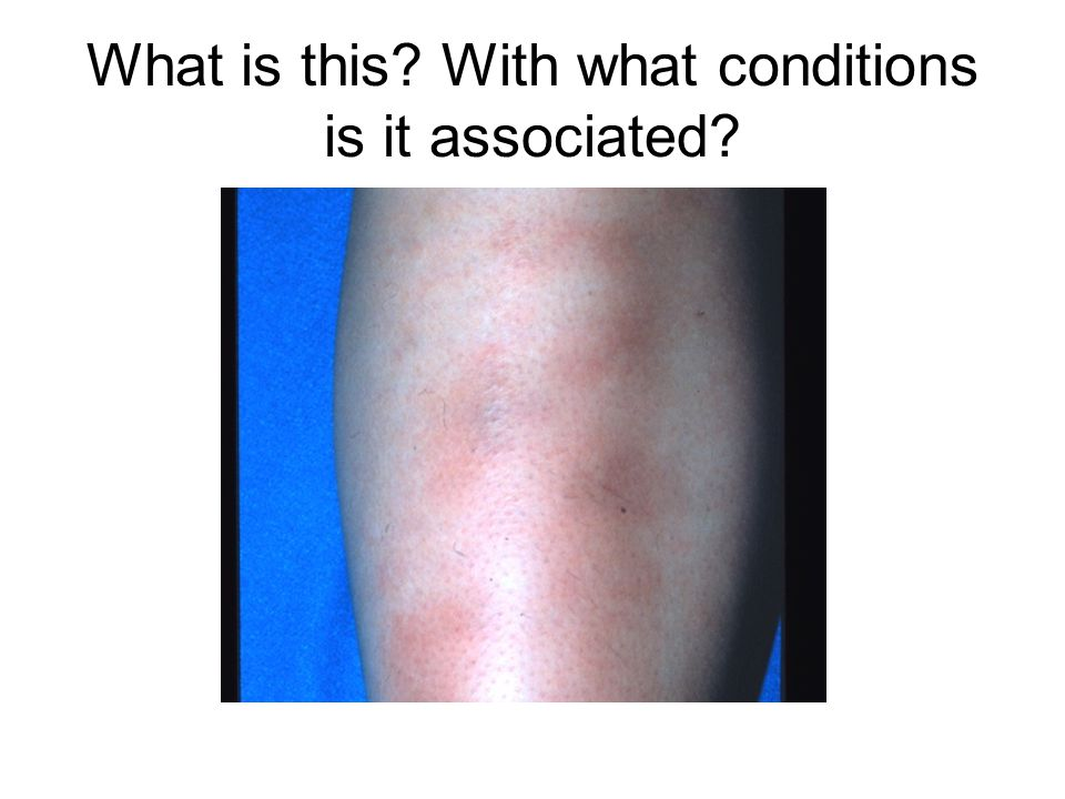 What is this With what conditions is it associated