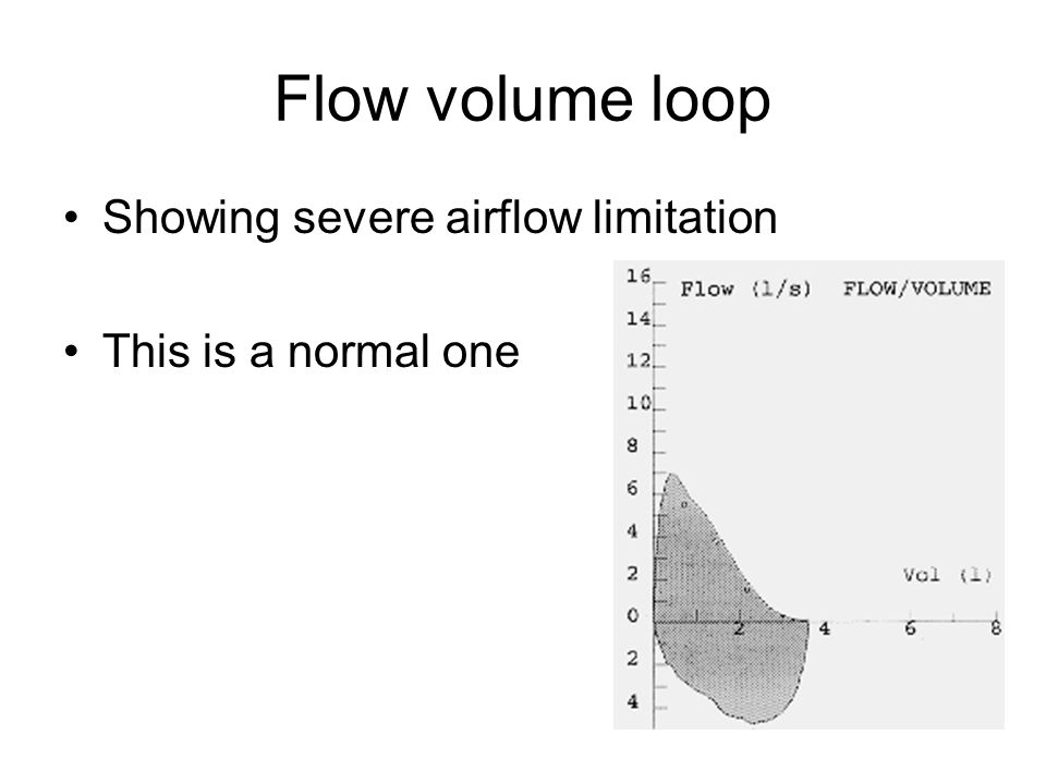 Flow volume loop Showing severe airflow limitation