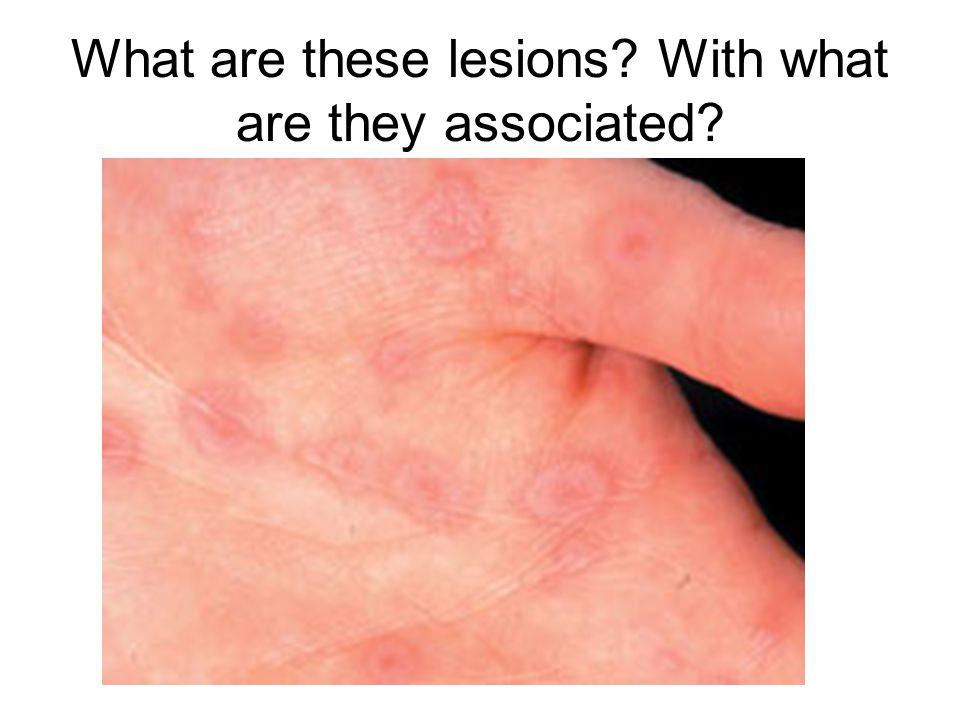 What are these lesions With what are they associated