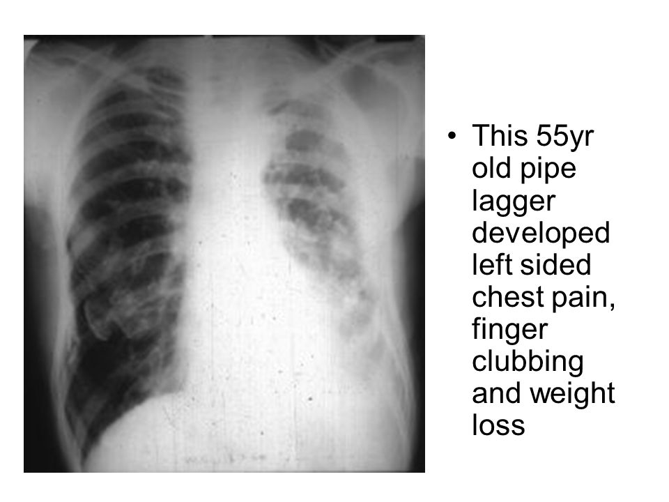 This 55yr old pipe lagger developed left sided chest pain, finger clubbing and weight loss