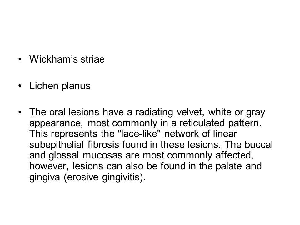 Wickham's striae Lichen planus.
