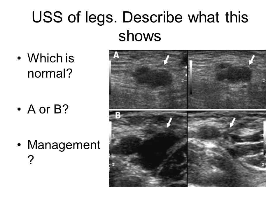 USS of legs. Describe what this shows