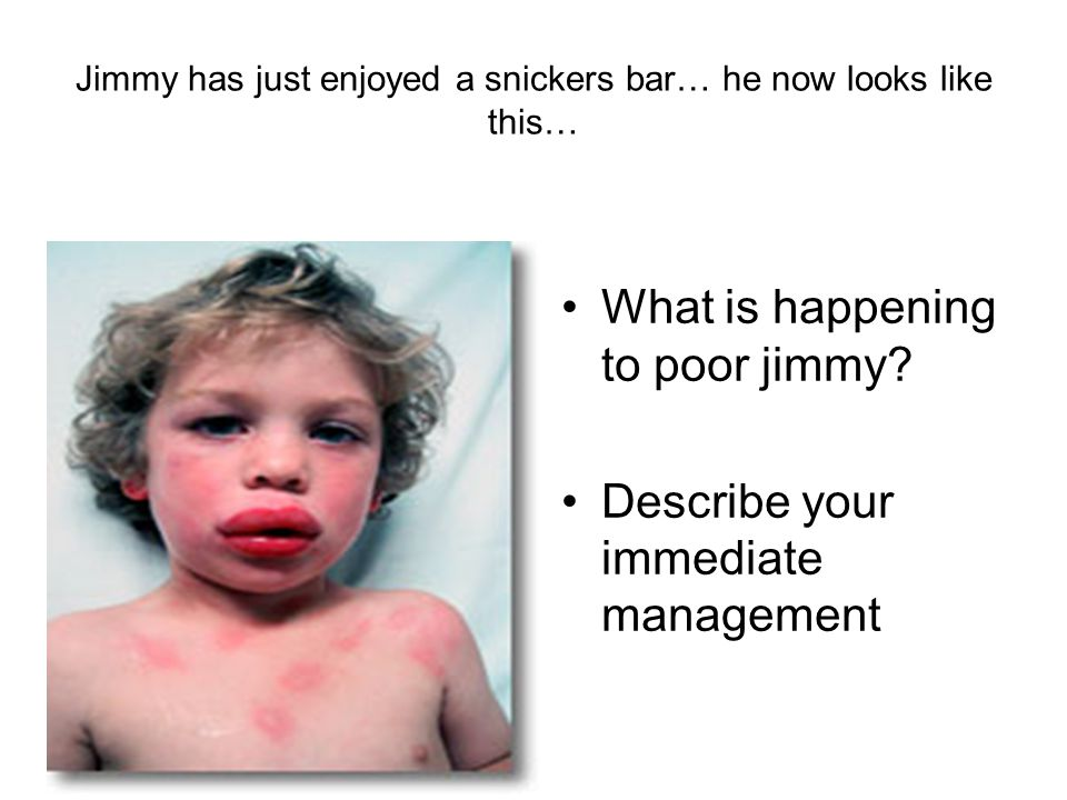 Jimmy has just enjoyed a snickers bar… he now looks like this…