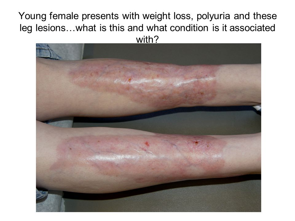Young female presents with weight loss, polyuria and these leg lesions…what is this and what condition is it associated with