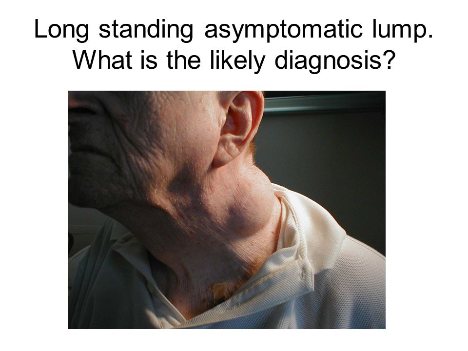 Long standing asymptomatic lump. What is the likely diagnosis