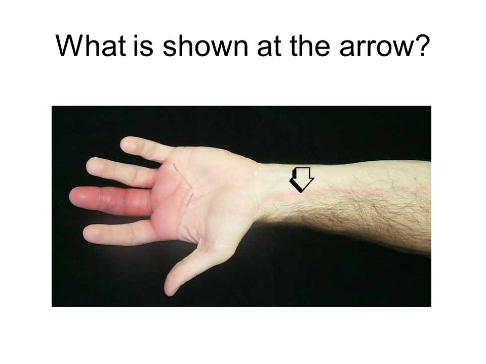 What is shown at the arrow