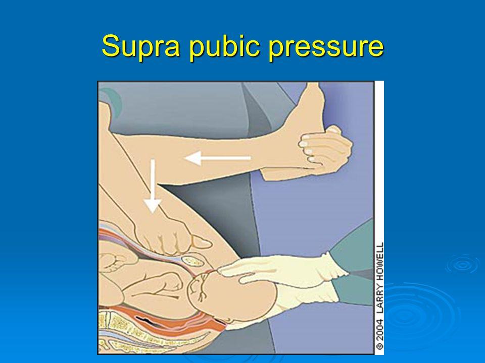 Supra pubic pressure