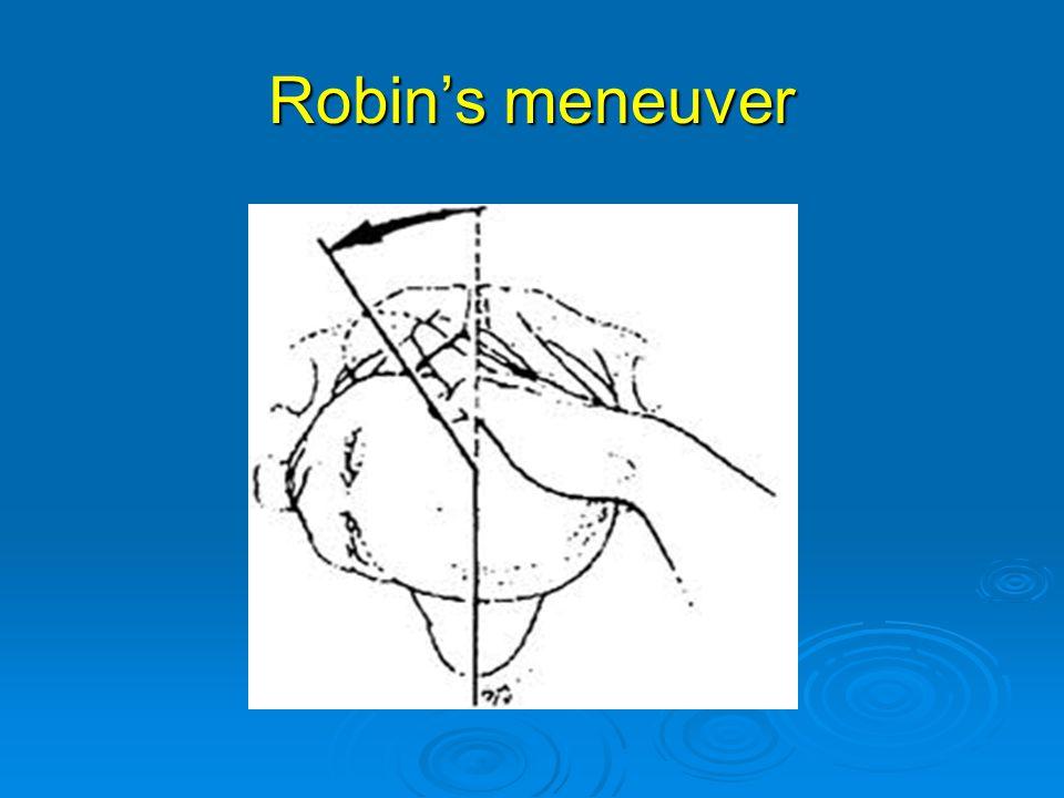 Robin's meneuver