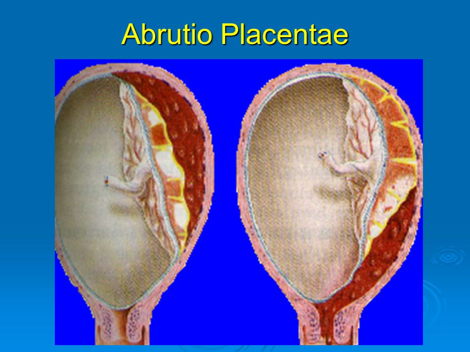 Abrutio Placentae