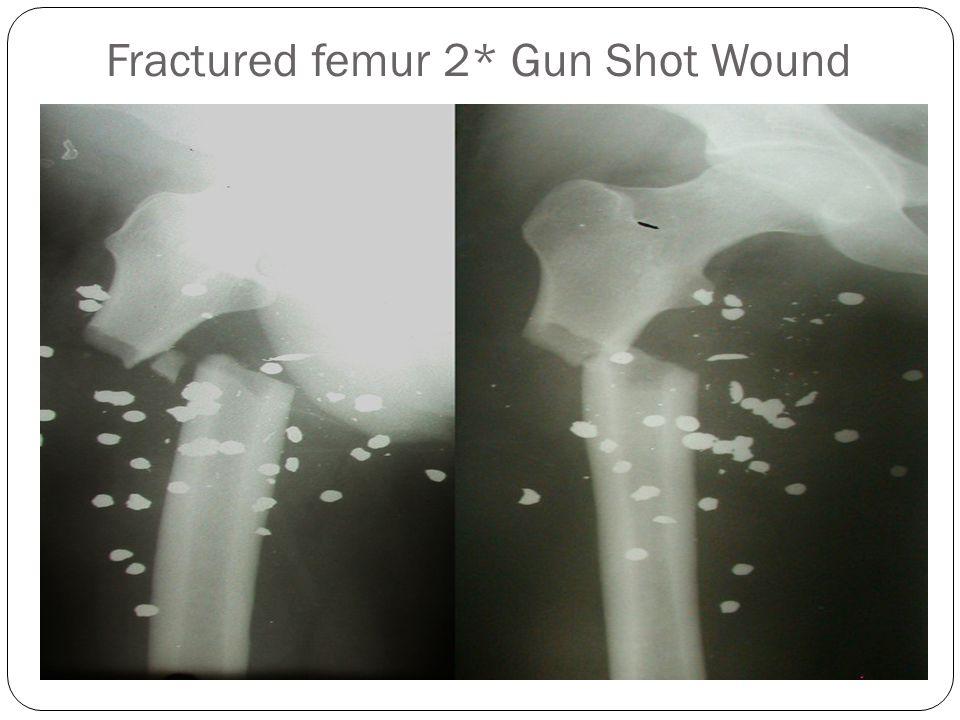 Fractured femur 2* Gun Shot Wound