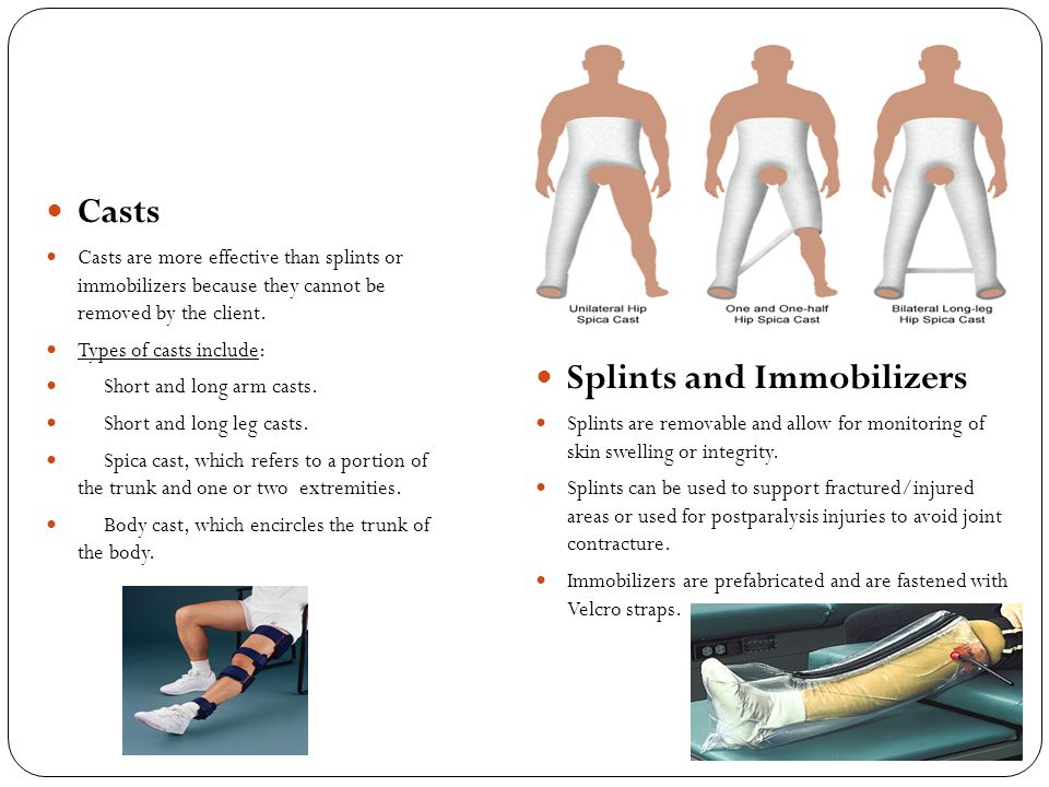 Splints and Immobilizers