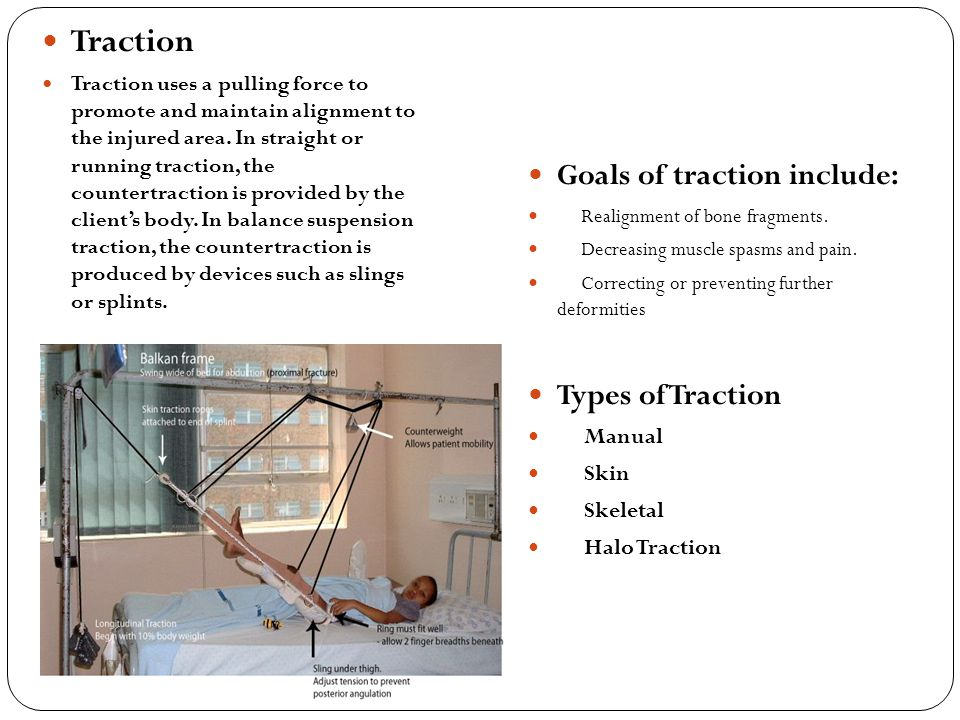Traction Goals of traction include: Types of Traction Manual Skin