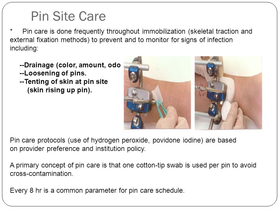 Pin Site Care * Pin care is done frequently throughout immobilization (skeletal traction and.