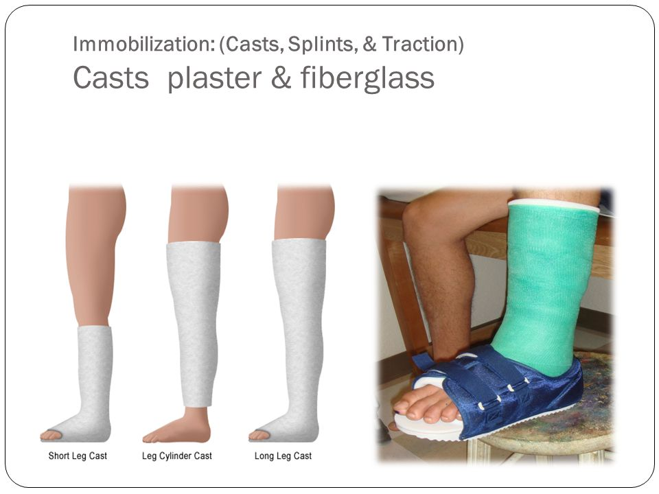 Immobilization: (Casts, Splints, & Traction) Casts plaster & fiberglass