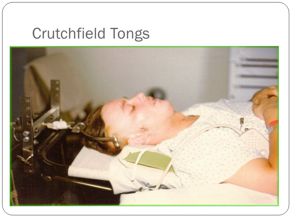 Crutchfield Tongs