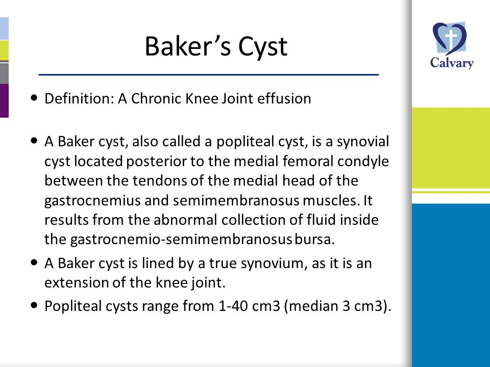 Baker's Cyst Definition: A Chronic Knee Joint effusion
