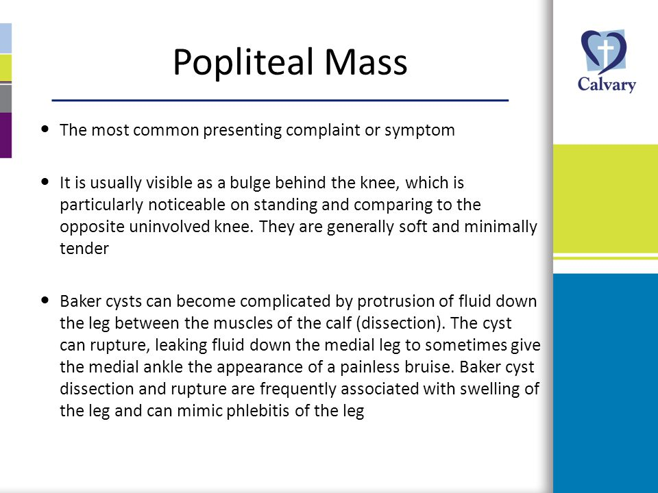 Popliteal Mass The most common presenting complaint or symptom