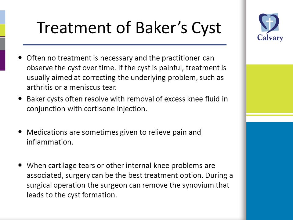 Treatment of Baker's Cyst