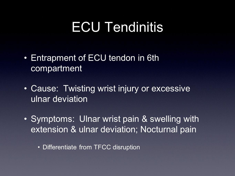 ECU Tendinitis Entrapment of ECU tendon in 6th compartment