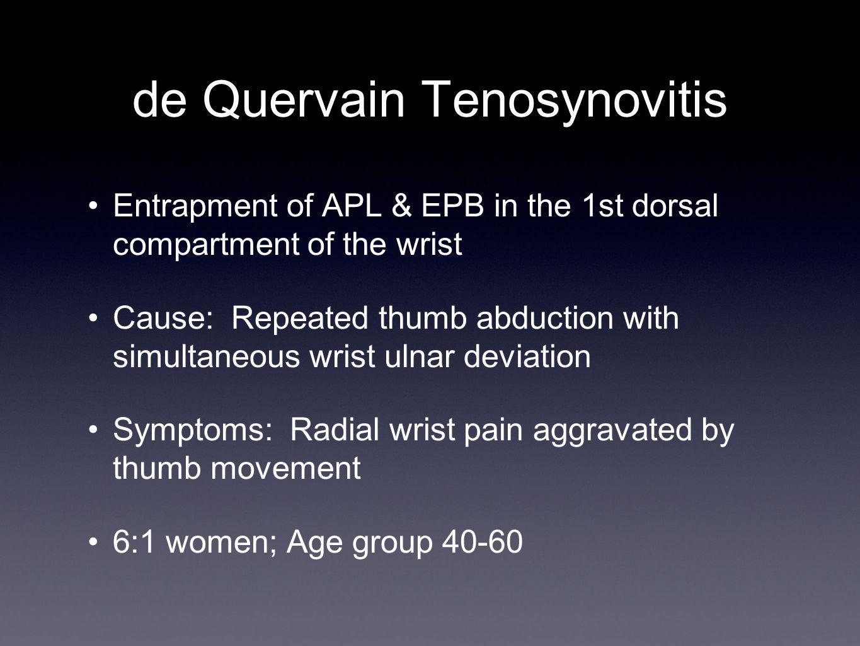 de Quervain Tenosynovitis