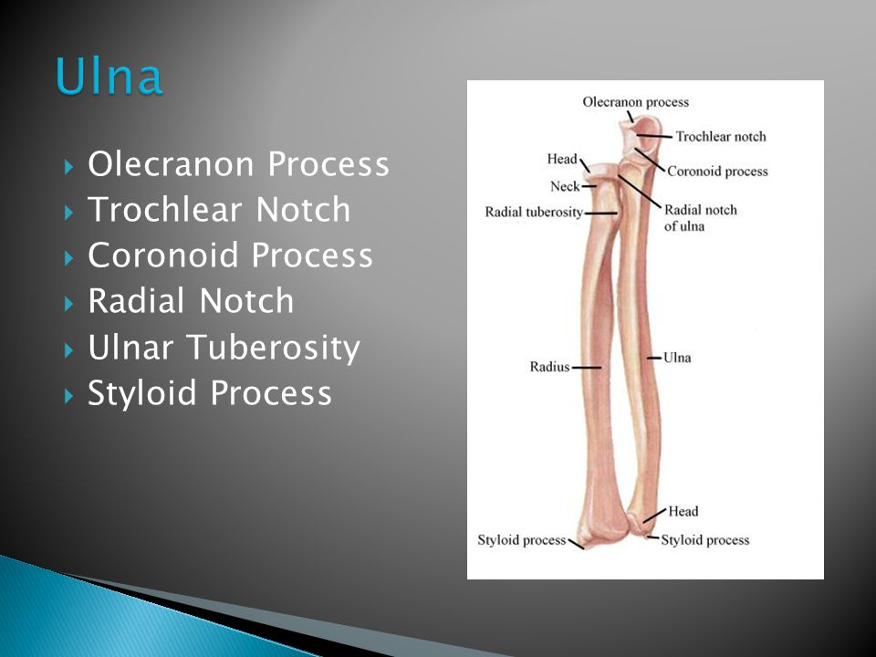 Ulna Olecranon Process Trochlear Notch Coronoid Process Radial Notch