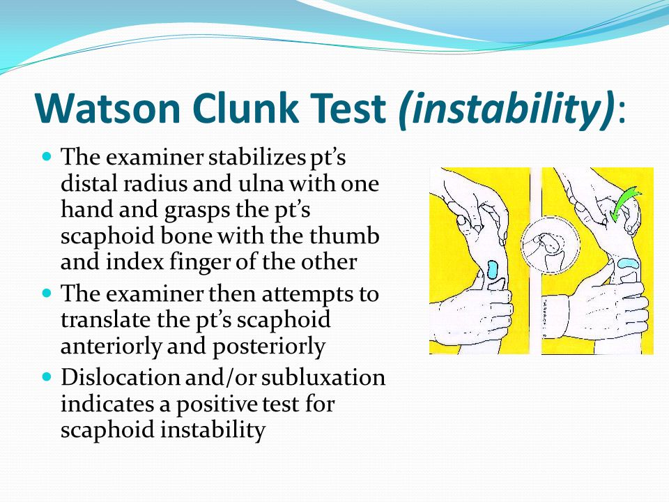 Watson Clunk Test (instability):