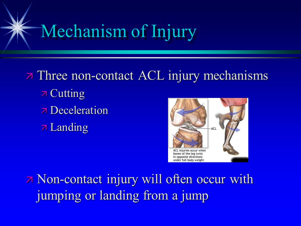 Mechanism of Injury Three non-contact ACL injury mechanisms