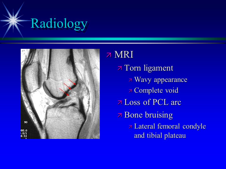 Radiology MRI Torn ligament Loss of PCL arc Bone bruising