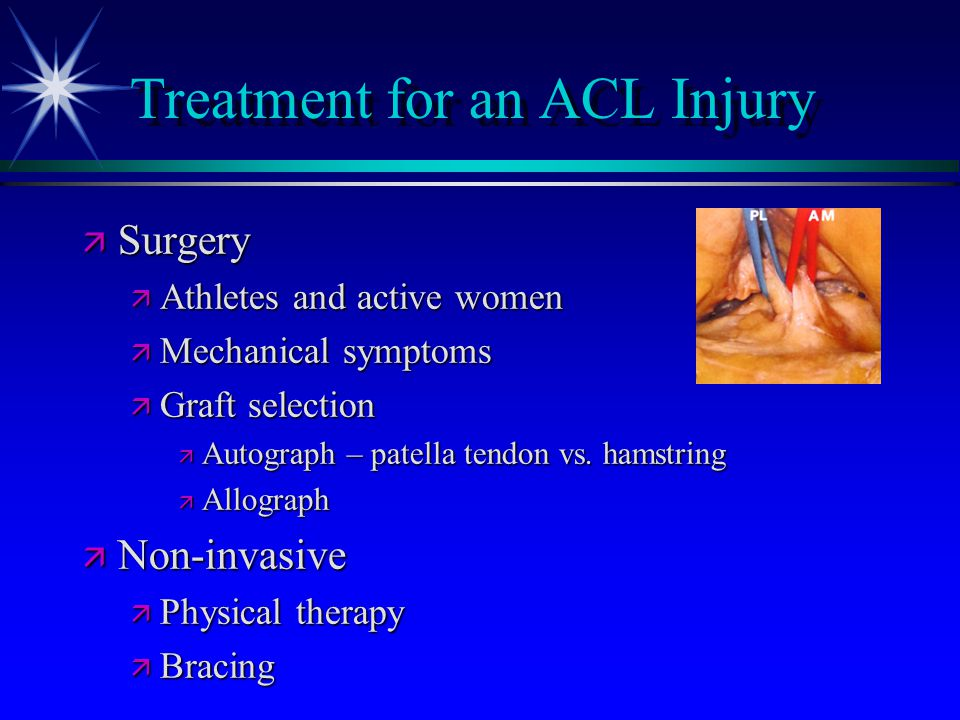 Treatment for an ACL Injury