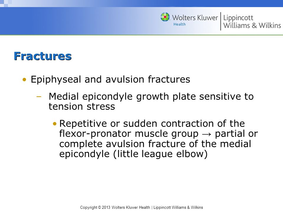 Fractures Epiphyseal and avulsion fractures